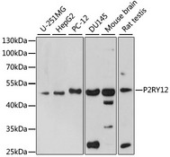 P2RY12 / P2Y12 Antibody - Western blot analysis of extracts of various cell lines, using P2RY12 antibody at 1:1000 dilution. The secondary antibody used was an HRP Goat Anti-Rabbit IgG (H+L) at 1:10000 dilution. Lysates were loaded 25ug per lane and 3% nonfat dry milk in TBST was used for blocking. An ECL Kit was used for detection and the exposure time was 180s.