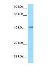 P2RY2 / P2Y2 antibody Western blot of MCF7 Cell lysate. Antibody concentration 1 ug/ml.  This image was taken for the unconjugated form of this product. Other forms have not been tested.