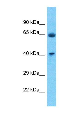Western blot of Human Fetal Lung. P2RY4 antibody dilution 1.0 ug/ml.  This image was taken for the unconjugated form of this product. Other forms have not been tested.