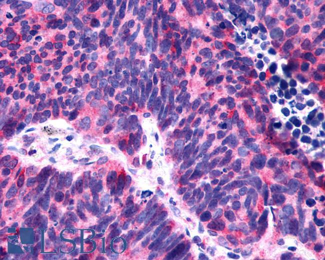 Anti-P2RY6 / P2Y6 antibody IHC of human Lung, Small Cell Carcinoma. Immunohistochemistry of formalin-fixed, paraffin-embedded tissue after heat-induced antigen retrieval.