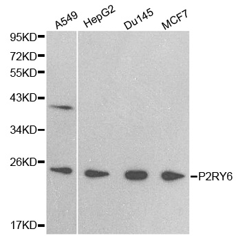P2RY6 / P2Y6 Antibody - Western blot analysis of extracts of various cell lines, using P2RY6 antibody.