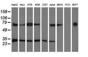 Western blot of extracts (35 ug) from 9 different cell lines by using anti-PYCR2 monoclonal antibody.