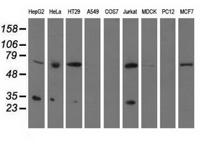 Western blot analysis of extracts (35ug) from 9 different cell lines by using anti-PYCR2 monoclonal antibody.