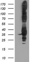 P5CR2 / PYCR2 Antibody - HEK293T cells were transfected with the pCMV6-ENTRY control (Left lane) or pCMV6-ENTRY PYCR2 (Right lane) cDNA for 48 hrs and lysed. Equivalent amounts of cell lysates (5 ug per lane) were separated by SDS-PAGE and immunoblotted with anti-PYCR2.