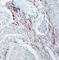 p66 / SHC antibody. IHC(P): Human Lung Cancer Tissue.