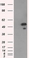 HEK293T cells were transfected with the pCMV6-ENTRY control (Left lane) or pCMV6-ENTRY SHC1 (Right lane) cDNA for 48 hrs and lysed. Equivalent amounts of cell lysates (5 ug per lane) were separated by SDS-PAGE and immunoblotted with anti-SHC1.
