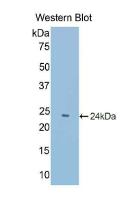 PABPC1L Antibody - Western blot of recombinant C20orf119.  This image was taken for the unconjugated form of this product. Other forms have not been tested.