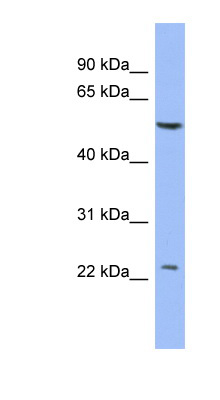 PABPC1L2A antibody LS-C110501 Western blot of THP-1 cell lysate.  This image was taken for the unconjugated form of this product. Other forms have not been tested.
