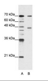 PABPC4 Antibody - A: Marker, B: HepG2 Cell Lysate.  This image was taken for the unconjugated form of this product. Other forms have not been tested.