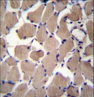 PACS2 Antibody immunohistochemistry of formalin-fixed and paraffin-embedded human skeletal muscle followed by peroxidase-conjugated secondary antibody and DAB staining.