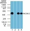 Western blot of PACSIN2 in human brain lysate in the 1) absence and 2) presence of immunizing peptide, 3) mouse brain lysate and 4) rat brain lysate using antibody at 0.05 ug/ml.