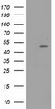 HEK293T cells were transfected with the pCMV6-ENTRY control (Left lane) or pCMV6-ENTRY PACSIN3 (Right lane) cDNA for 48 hrs and lysed. Equivalent amounts of cell lysates (5 ug per lane) were separated by SDS-PAGE and immunoblotted with anti-PACSIN3.