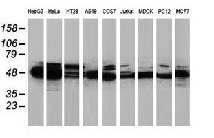 Western blot of extracts (35 ug) from 9 different cell lines by using anti-PACSIN3 monoclonal antibody.