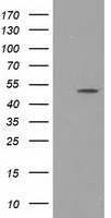 PACSIN3 Antibody - HEK293T cells were transfected with the pCMV6-ENTRY control (Left lane) or pCMV6-ENTRY PACSIN3 (Right lane) cDNA for 48 hrs and lysed. Equivalent amounts of cell lysates (5 ug per lane) were separated by SDS-PAGE and immunoblotted with anti-PACSIN3.