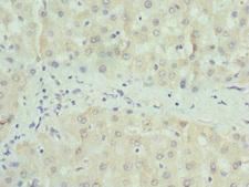 PAICS / ADE2 Antibody - Immunohistochemistry of paraffin-embedded human liver tissue at dilution 1:100