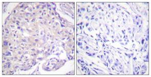 IHC of paraffin-embedded human breast carcinoma, using PAK1 (Phospho-Thr212) Antibody. The sample on the right was incubated with synthetic peptide.