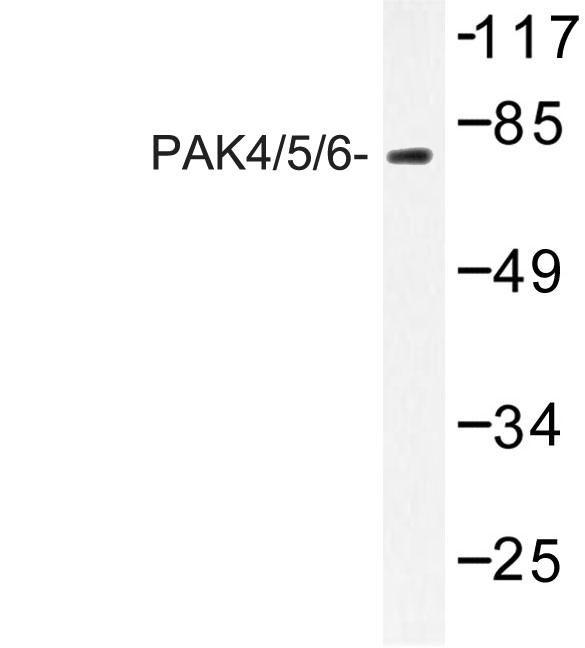 PAK4 + PAK5 + PAK6 Antibody - Western blot of PAK4/5/6 (V469) pAb in extracts from K562 cell treated with PMA 125ng/ml 30'.