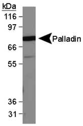 PALLD / Palladin Antibody - Palladin Antibody (1E6) - Western Blot on MDA-MB-231 lysate.  This image was taken for the unconjugated form of this product. Other forms have not been tested.