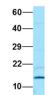 PAM16 antibody Western Blot of Jurkat lysate. Antibody Dilution: 1.0 ug/ml. PAM16 is supported by BioGPS gene expression data to be expressed in Jurkat. Antibody dilution: 1 ug/ml.  This image was taken for the unconjugated form of this product. Other forms have not been tested.