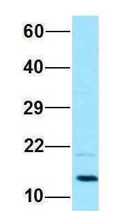 PAM16 antibody Western Blot of HeLa lysate. Antibody Dilution: 1.0ug/ml. PAM16 is supported by BioGPS gene expression data to be expressed in HeLa. Antibody dilution: 1 ug/ml.  This image was taken for the unconjugated form of this product. Other forms have not been tested.