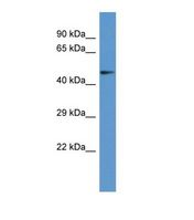 Western blot of Human COLO205. PANK2 antibody dilution 1.0 ug/ml.  This image was taken for the unconjugated form of this product. Other forms have not been tested.