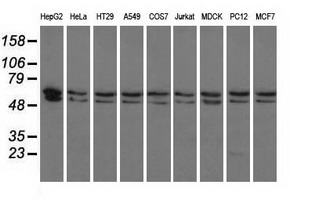 Western blot of extracts (35 ug) from 9 different cell lines by using anti-PANK2 monoclonal antibody.