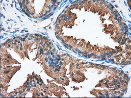 IHC of paraffin-embedded Human prostate tissue using anti-PANK2 mouse monoclonal antibody. (Dilution 1:50).