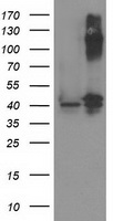 PANK3 Antibody - HEK293T cells were transfected with the pCMV6-ENTRY control (Left lane) or pCMV6-ENTRY PANK3 (Right lane) cDNA for 48 hrs and lysed. Equivalent amounts of cell lysates (5 ug per lane) were separated by SDS-PAGE and immunoblotted with anti-PANK3.