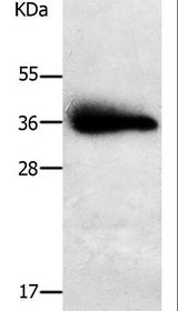 PAP2a / PPAP2A Antibody - Western blot analysis of Human liver cancer tissue, using PPAP2A Polyclonal Antibody at dilution of 1:650.