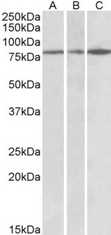 PAPD5 Antibody - Goat Anti-PAPD5 (aa78-90) Antibody (0.3µg/ml) staining of Human Cerebral Cortex (A), Human Frontal Cortex (B) and Mouse Brain lysates (35µg protein in RIPA buffer). Primary incubation was 1 hour. Detected by chemiluminescencence.