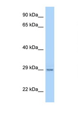 Paqr4 antibody Western blot of Rat Lung lysate. Antibody concentration 1 ug/ml.  This image was taken for the unconjugated form of this product. Other forms have not been tested.