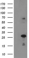 Negative control E. coli lysate (Left lane) or E. coli lysate containing recombinant protein fragment for human SPG7(NP_003110) gene (amino acids 300-573) (Right lane). Equivalent amounts (5 ug per lane) were separated by SDS-PAGE and then immunoblotted with anti-SPG7. .