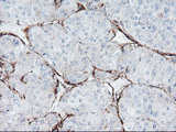 IHC of paraffin-embedded Carcinoma of Human liver tissue using anti-SPG7 mouse monoclonal antibody. (Heat-induced epitope retrieval by 10mM citric buffer, pH6.0, 120°C for 3min).