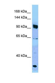 PARG Antibody - PARG antibody Western blot of Jurkat Cell lysate. Antibody concentration 1 ug/ml.  This image was taken for the unconjugated form of this product. Other forms have not been tested.