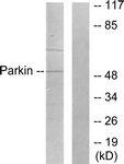 Western blot of extracts from Jurkat cells, using Parkin Antibody. The lane on the right is treated with the synthesized peptide.
