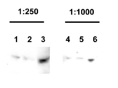 The Parkin antibody was tested to detect Parkin levels in stable Hek cells expressing Parkin. Antibody dilutions: 1:250 and 1:1000 Hek cell lysate used: 50 ug (lanes 1 & 4): 100 ug (lanes 2 & 5); 200 ug (lanes 3 & 6).