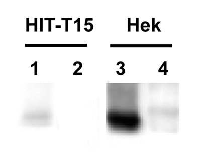 The Parkin antibody was tested to pull down endogenously expressed Parking in HIT-T15 cells (Lane 1, HIT-T15 cells; Lane 2, negative control) and transiently transfected Parkin in Hek cells (Lane 3, Hek cells; Lane 4, negative control). Amount of antibody used: 4 ul (=4 ug) Lysate of cells used: 1000 ug.