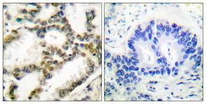 IHC of paraffin-embedded human lung carcinoma tissue, using DJ-1 Antibody. The picture on the right is treated with the synthesized peptide.