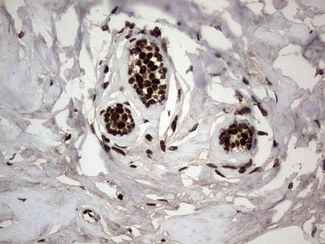 PARP1 Antibody - Immunohistochemical staining of paraffin-embedded Human breast tissue within the normal limits using anti-PARP1 mouse monoclonal antibody. (Heat-induced epitope retrieval by 1 mM EDTA in 10mM Tris, pH8.5, 120C for 3min,