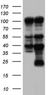 PARP1 Antibody - HEK293T cells were transfected with the pCMV6-ENTRY control. (Left lane) or pCMV6-ENTRY PARP1. (Right lane) cDNA for 48 hrs and lysed. Equivalent amounts of cell lysates. (5 ug per lane) were separated by SDS-PAGE and immunoblotted with anti-PARP1.
