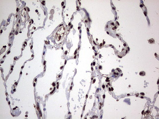 PARP1 Antibody - Immunohistochemical staining of paraffin-embedded Human lung tissue within the normal limits using anti-PARP1 mouse monoclonal antibody. (Heat-induced epitope retrieval by 1 mM EDTA in 10mM Tris, pH8.5, 120C for 3min,