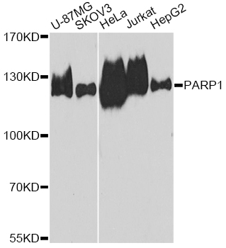 PARP1 Antibody - Western blot analysis of extracts of various cell lines, using PARP1 antibody at 1:1000 dilution. The secondary antibody used was an HRP Goat Anti-Rabbit IgG (H+L) at 1:10000 dilution. Lysates were loaded 25ug per lane and 3% nonfat dry milk in TBST was used for blocking. An ECL Kit was used for detection and the exposure time was 90s.