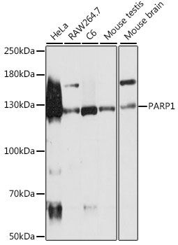 PARP1 Antibody - Western blot analysis of extracts of various cell lines, using PARP1 antibodyat 1:500 dilution. The secondary antibody used was an HRP Goat Anti-Rabbit IgG (H+L) at 1:10000 dilution. Lysates were loaded 25ug per lane and 3% nonfat dry milk in TBST was used for blocking. An ECL Kit was used for detection and the exposure time was 5s.