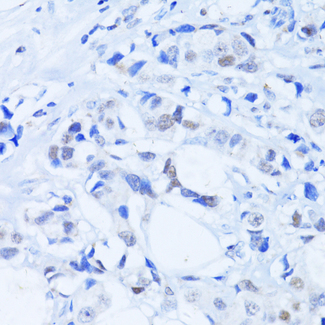 PARP1 Antibody - Immunohistochemistry of paraffin-embedded human breast cancer using PARP1 Antibodyat dilution of 1:100 (40x lens).