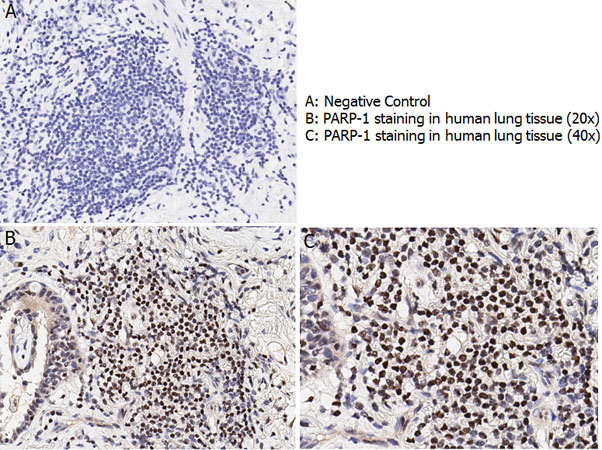 PARP1 Antibody - Immunohistochemistry with anti-PARP-1 antibody showing nuclear positivity in human lung tissue at 20x and 40x (B & C). Staining was performed on Leica Bond system using the standard protocol. Formalin fixed/paraffin embedded tissue sections were subjected to antigen retrieval and then incubated with rabbit anti-PARP-1 antibody at 1:100 dilution for 60 minutes. Biotinylated Anti-rabbit secondary antibody was used at 1:200 dilution to detect primary antibody. The reaction was developed using streptavidin-HRP conjugated compact polymer system and visualized with chromogen substrate, 3?-diamino-benzidine substrate (DAB). The sections were then counterstained with hematoxylin to detect cell nuclei.