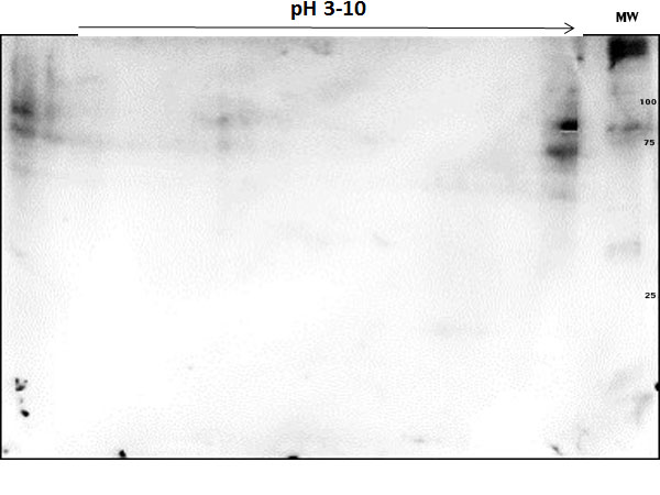 PARP1 Antibody - OVCAR-8 Wild Type Lysate was separated on 2D SDS-PAGE and blotted on PVDF to analyze immunocoverage of PARP1 antibody specific for the zinc finger 1 domain of PARP1. Primary Antibody: Anti-PARP1 (n-term) antibody 1:200 overnight at 4°C. Secondary Antibody: Goat anti-rabbit Peroxidase at 1:2,000 at RT for 30min. Blocking Buffer: BlockOut for 30 min at RT. Predicted/observed: ~110 kDa and pI 9.7.