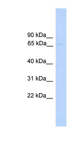 PARP6 antibody LS-C117158 Western blot of 721_B cell lysate.  This image was taken for the unconjugated form of this product. Other forms have not been tested.