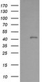 HEK293T cells were transfected with the pCMV6-ENTRY control (Left lane) or pCMV6-ENTRY PARVA (Right lane) cDNA for 48 hrs and lysed. Equivalent amounts of cell lysates (5 ug per lane) were separated by SDS-PAGE and immunoblotted with anti-PARVA.