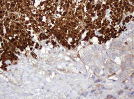 IHC of paraffin-embedded Adenocarcinoma of Human colon tissue using anti-PARVB mouse monoclonal antibody.