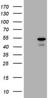 HEK293T cells were transfected with the pCMV6-ENTRY control (Left lane) or pCMV6-ENTRY PARVB (Right lane) cDNA for 48 hrs and lysed. Equivalent amounts of cell lysates (5 ug per lane) were separated by SDS-PAGE and immunoblotted with anti-PARVB.